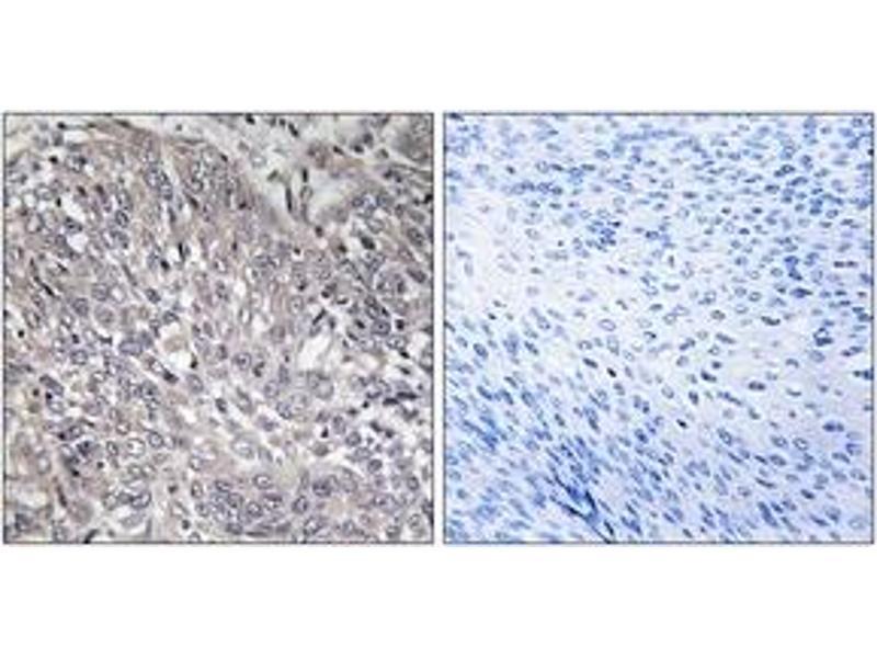 Immunohistochemistry (IHC) image for anti-Inositol 1,4,5-Trisphosphate Receptor, Type 1 (ITPR1) (AA 1566-1615) antibody (ABIN1532695)
