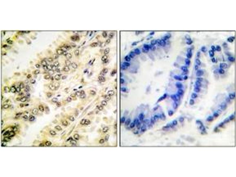 Immunohistochemistry (IHC) image for anti-SGK1 antibody (serum/glucocorticoid Regulated Kinase 1) (pSer422) (ABIN1531243)