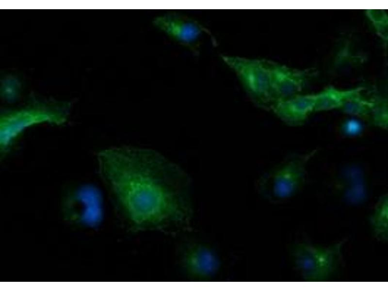 Immunofluorescence (IF) image for anti-Tubulin, Beta, 5 (TUBB5) antibody (ABIN2734580)