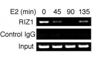 Image no. 1 for anti-PR Domain Containing 2, with ZNF Domain (PRDM2) (AA 1-347) antibody (ABIN3032300)