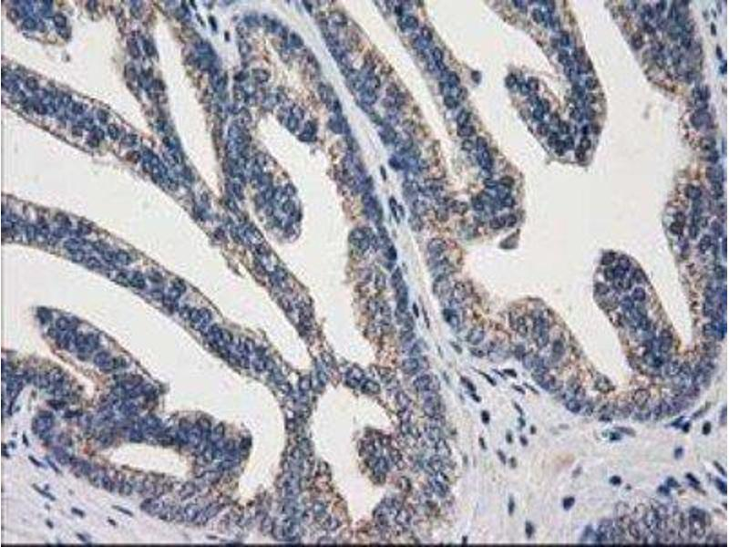 Immunohistochemistry (Paraffin-embedded Sections) (IHC (p)) image for anti-ADP-Ribosylation Factor GTPase Activating Protein 1 (ARFGAP1) antibody (ABIN4281365)