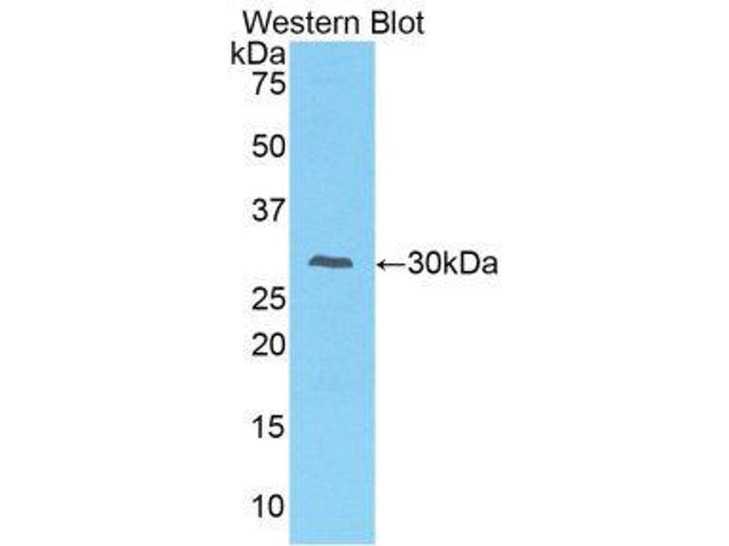 Western Blotting (WB) image for anti-Interleukin-1 Receptor-Associated Kinase 2 (IRAK2) (AA 211-458) antibody (ABIN1859468)