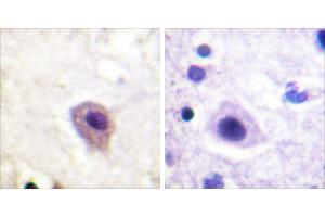 Image no. 1 for anti-Dystrophin Related Protein 2 (DRP2) (pThr514) antibody (ABIN1576126)