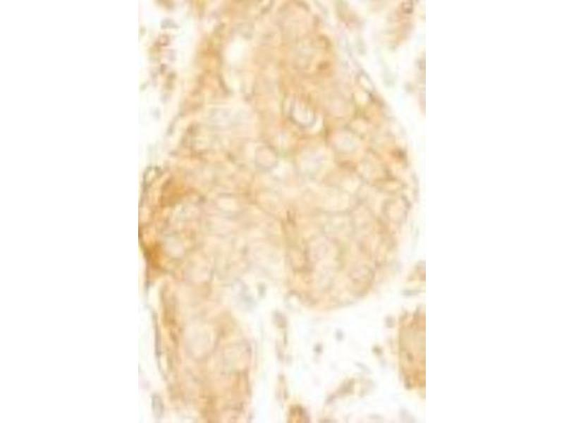 Immunohistochemistry (Paraffin-embedded Sections) (IHC (p)) image for anti-SAM and SH3 Domain Containing 1 (SASH1) (AA 750-800) antibody (ABIN439801)
