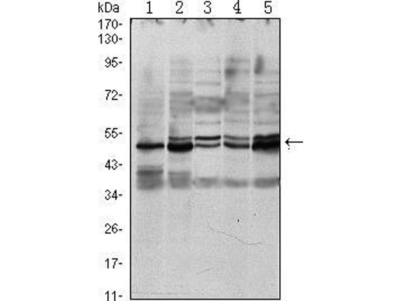 Western Blotting (WB) image for anti-SMAD, Mothers Against DPP Homolog 3 (SMAD3) antibody (ABIN969402)