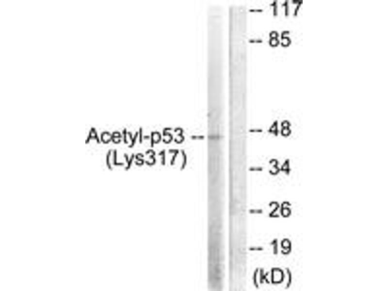 Western Blotting (WB) image for anti-p53 antibody (Tumor Protein P53) (acLys317) (ABIN1535527)