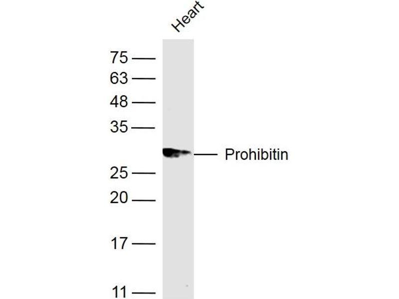 image for anti-Prohibitin (PHB) antibody (ABIN686692)