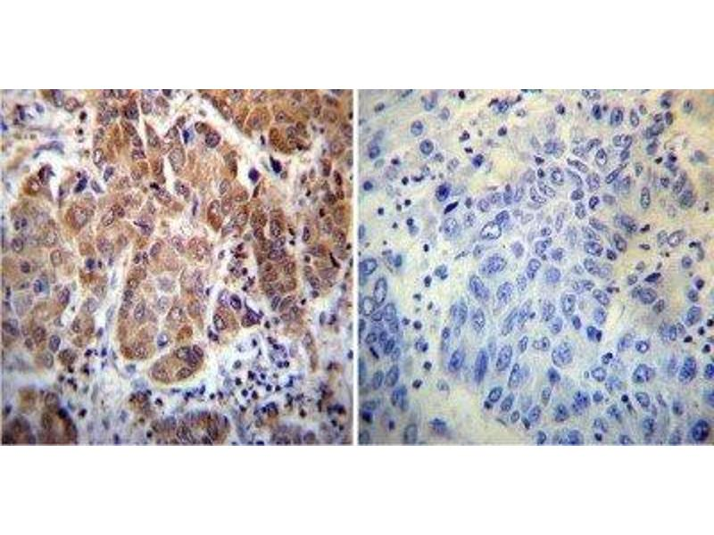 Immunohistochemistry (Paraffin-embedded Sections) (IHC (p)) image for anti-Peptidylprolyl Isomerase D (PPID) antibody (ABIN267196)