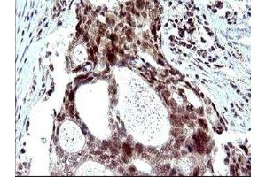 Immunohistochemistry (IHC) image for anti-PMS2 Postmeiotic Segregation Increased 2 (S. Cerevisiae) (PMS2) antibody (ABIN4346521)