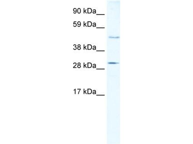 Western Blotting (WB) image for anti-Caspase 3, Apoptosis-Related Cysteine Peptidase (CASP3) (N-Term) antibody (ABIN2774596)