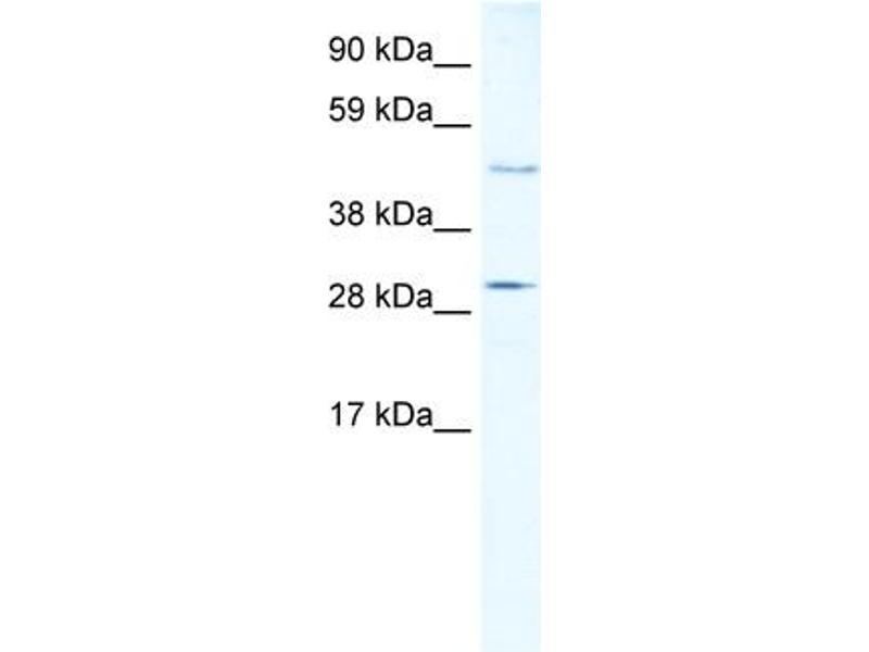 Western Blotting (WB) image for anti-Caspase 3, Apoptosis-Related Cysteine Peptidase (CASP3) (N-Term) antibody (ABIN2774596)