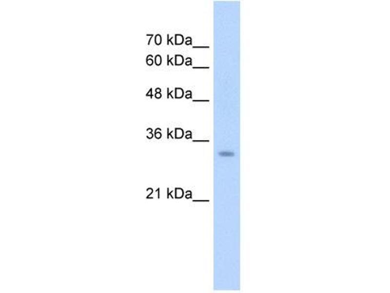 Western Blotting (WB) image for anti-Glutaminase 2 (Liver, Mitochondrial) (GLS2) (Middle Region) antibody (ABIN2781319)