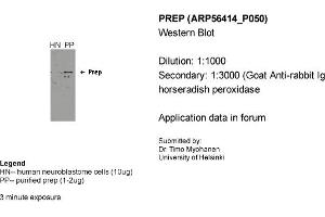 Image no. 2 for anti-Prolyl Endopeptidase (PREP) (Middle Region) antibody (ABIN2786689)