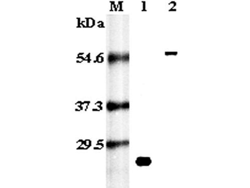 Western Blotting (WB) image for anti-RANK (CD265) antibody (ABIN1169113)