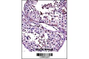 Image no. 1 for anti-Cancer/testis Antigen 2 (CTAG2) (AA 122-149) antibody (ABIN5536014)