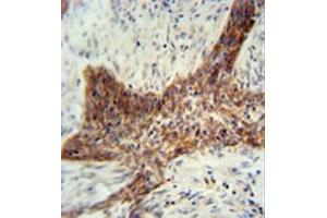 Image no. 1 for anti-Rab Interacting Lysosomal Protein-Like 2 (RILPL2) (AA 120-149), (Middle Region) antibody (ABIN954552)