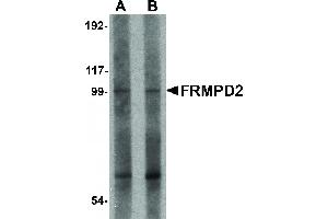 Image no. 1 for anti-FERM and PDZ Domain Containing 2 (FRMPD2) (N-Term) antibody (ABIN6656899)