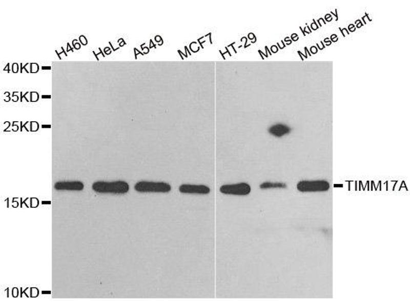 Image no. 2 for anti-Translocase of Inner Mitochondrial Membrane 17 Homolog A (Yeast) (TIMM17A) antibody (ABIN2560420)