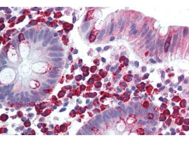 image for anti-Leukocyte Receptor tyrosine Kinase (LTK) (AA 800-864) antibody (ABIN292876)