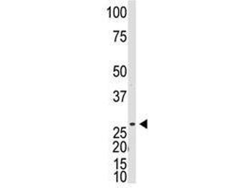 Image no. 1 for anti-DKK1 antibody (Dickkopf Homolog 1 (Xenopus Laevis)) (C-Term) (ABIN357076)
