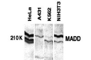 Image no. 1 for anti-MAP-Kinase Activating Death Domain (MADD) (C-Term) antibody (ABIN1030503)