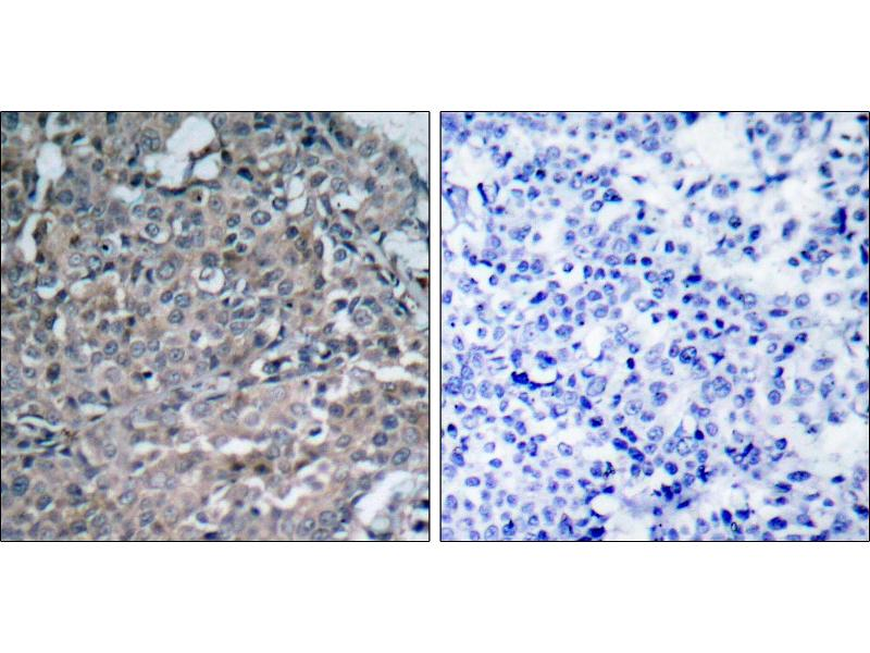 Image no. 2 for anti-PTK2 Protein tyrosine Kinase 2 (PTK2) (Tyr925) antibody (ABIN1576442)