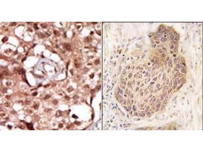 image for anti-Receptor-Interacting Serine-threonine Kinase 2 (RIPK2) (C-Term) antibody (ABIN360158)