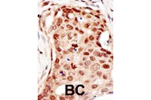 Immunohistochemistry (IHC) image for anti-CBL antibody (Cas-Br-M (Murine) Ecotropic Retroviral Transforming Sequence) (AA 424-453) (ABIN388072)