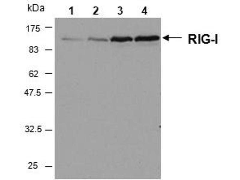 Western Blotting (WB) image for anti-DEAD (Asp-Glu-Ala-Asp) Box Polypeptide 58 (DDX58) (AA 201-713) antibody (ABIN1169336)