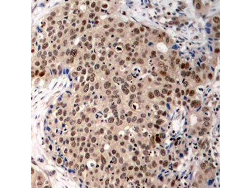 Immunohistochemistry (IHC) image for anti-Mitogen-Activated Protein Kinase-Activated Protein Kinase 2 (MAPKAPK2) (pThr334) antibody (ABIN1870393)