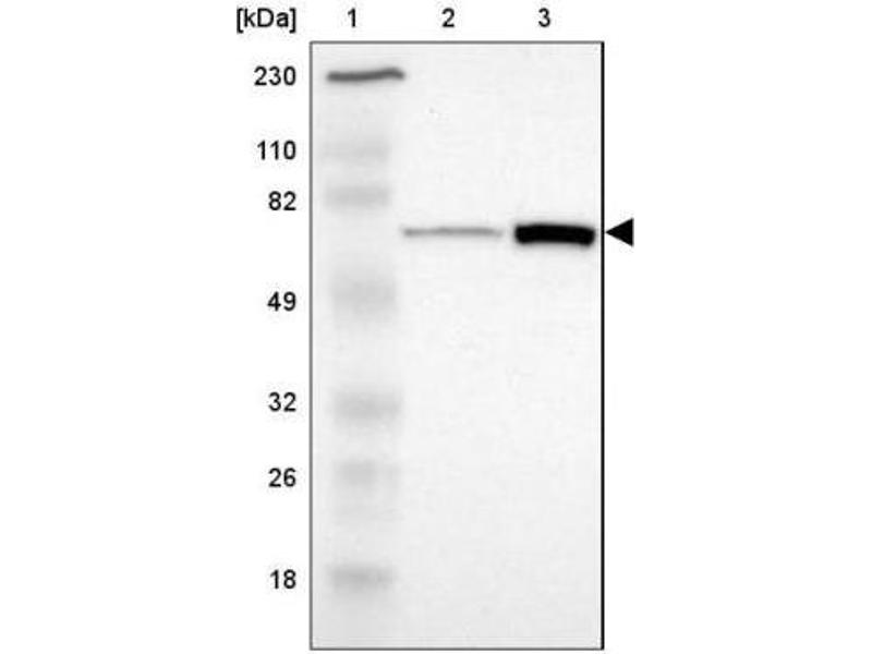 Western Blotting (WB) image for anti-Protein Kinase, AMP-Activated, gamma 2 Non-Catalytic Subunit (PRKAG2) antibody (ABIN4347313)