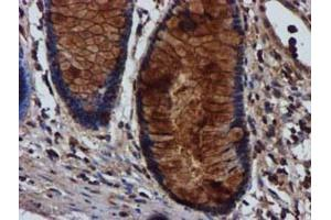 Immunohistochemistry (Paraffin-embedded Sections) (IHC (p)) image for anti-C1S antibody (Complement Component 1, S Subcomponent) (ABIN4299882)