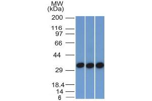 Image no. 9 for anti-Epithelial Cell Adhesion Molecule (EPCAM) (AA 77-202), (Extracellular Domain) antibody (ABIN6939977)