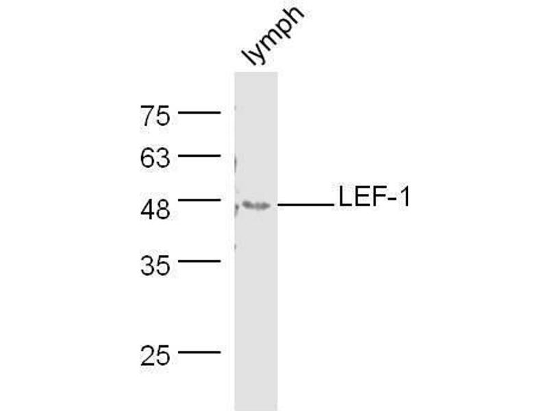 Western Blotting (WB) image for anti-LEF1 antibody (Lymphoid Enhancer-Binding Factor 1) (ABIN735248)