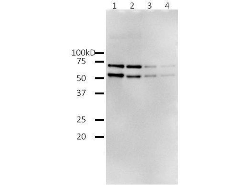 Western Blotting (WB) image for HIV-1 Reverse Transcriptase (HIV1RT) (Active) protein (ABIN2452197)