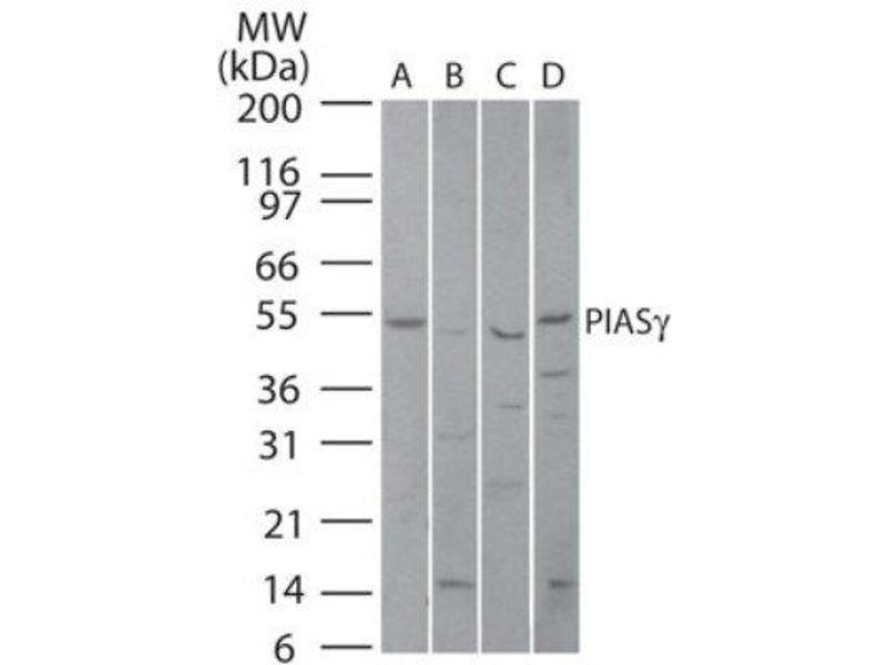 Western Blotting (WB) image for anti-Protein Inhibitor of Activated STAT, 4 (PIAS4) antibody (ABIN269501)