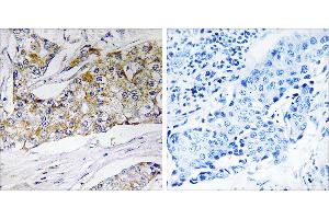 Image no. 1 for anti-Dehydrogenase/reductase (SDR Family) Member 11 (DHRS11) antibody (ABIN1576070)