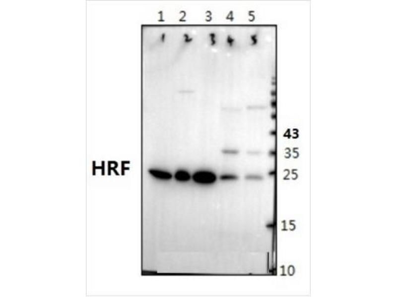 Western Blotting (WB) image for anti-Tumor Protein, Translationally-Controlled 1 (TPT1) antibody (ABIN408173)