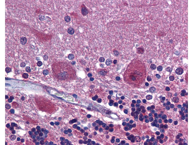Immunohistochemistry (IHC) image for anti-Platelet-Derived Growth Factor Receptor, alpha Polypeptide (PDGFRA) (AA 1035-1053) antibody (ABIN790499)