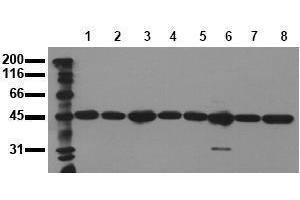 Western Blotting (WB) image for anti-MAP2K2 antibody (Mitogen-Activated Protein Kinase Kinase 2) (ABIN126838)