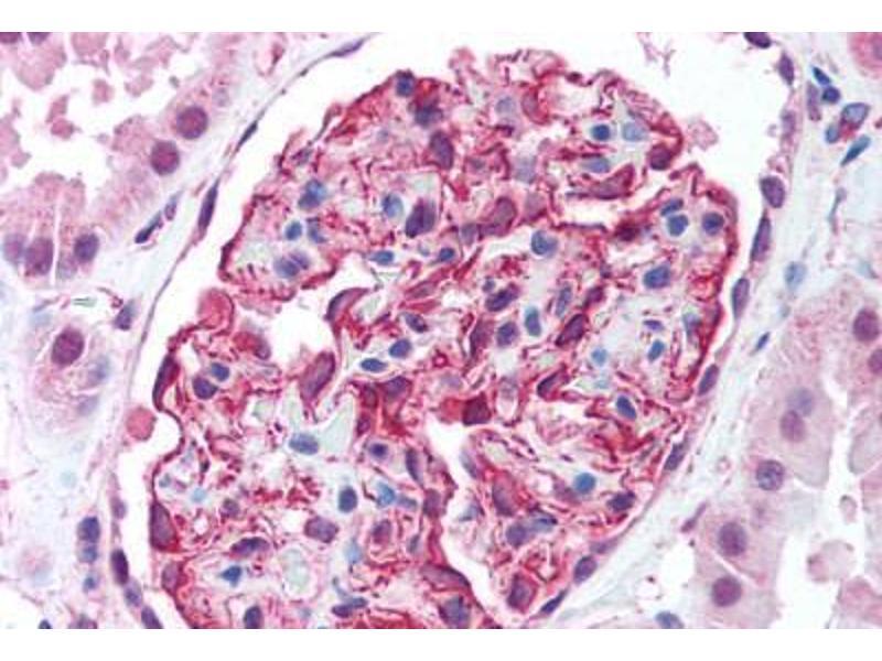 Immunohistochemistry (Paraffin-embedded Sections) (IHC (p)) image for anti-V-Akt Murine Thymoma Viral Oncogene Homolog 2 (AKT2) (C-Term) antibody (ABIN213654)