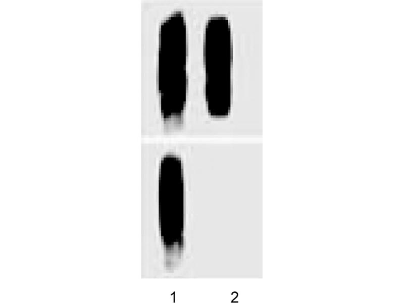 Western Blotting (WB) image for anti-Catenin (Cadherin-Associated Protein), delta 1 (CTNND1) (AA 1-911), (pTyr280) antibody (ABIN968865)
