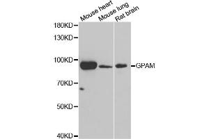 Image no. 1 for anti-Glycerol-3-Phosphate Acyltransferase, Mitochondrial (GPAM) antibody (ABIN6570564)