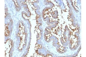 Image no. 6 for anti-5'-Nucleotidase, Ecto (CD73) (NT5E) antibody (ABIN6940229)
