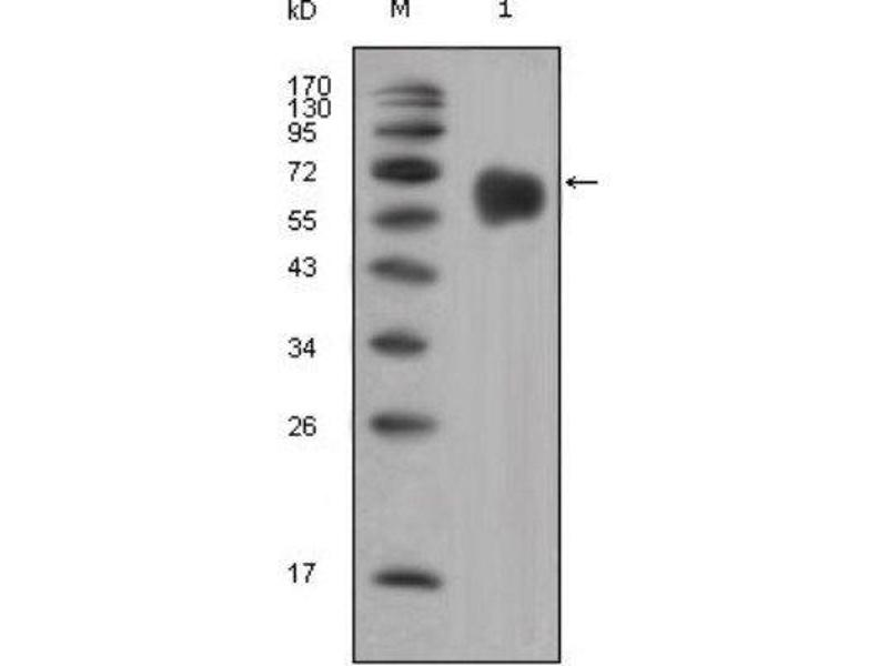 Western Blotting (WB) image for anti-Fibroblast Growth Factor Receptor 4 (FGFR4) antibody (ABIN4311563)