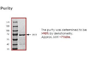 Western Blotting (WB) image for Mitogen-Activated Protein Kinase 8 (MAPK8) (Active) protein (ABIN593493)