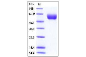 Image no. 1 for Angiotensinogen (serpin Peptidase Inhibitor, Clade A, Member 8) (AGT) (AA 1-485) protein (His tag) (ABIN2003701)