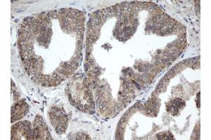 Image no. 1 for anti-Palmitoyl-Protein Thioesterase 1 (PPT1) (AA 100-306) antibody (ABIN1490801)
