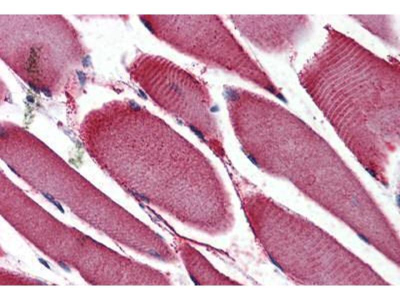 Immunohistochemistry (IHC) image for anti-Nuclear Receptor Subfamily 4, Group A, Member 3 (NR4A3) (Internal Region) antibody (ABIN1049141)
