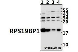 Image no. 1 for anti-Ribosomal Protein S19 Binding Protein 1 (RPS19BP1) antibody (ABIN6710894)